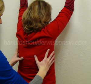 Thoracic outlet syndrome exercises improve shoulder blade mechanics with overhead reaching